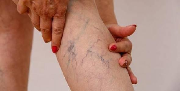 Cirurgias vasculares tradicionais e sem cortes