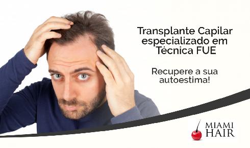 Miami Hair Transplante Capilar | Alphaville