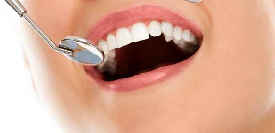 Quanto tempo dura a lente de contato dental?